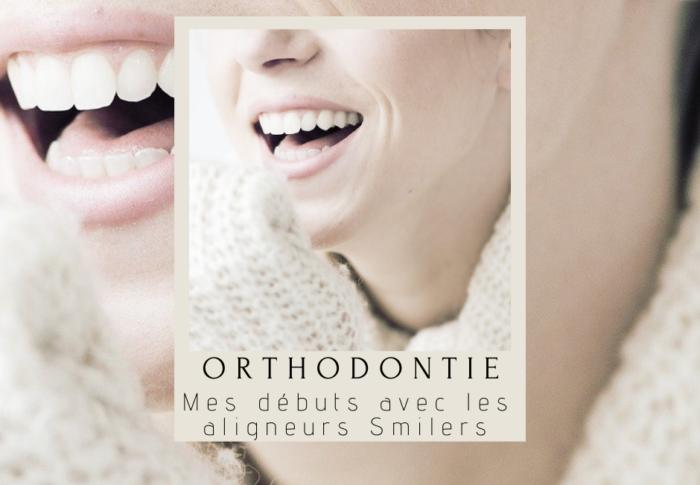 Orthodontie adulte : mon traitement avec Smilers
